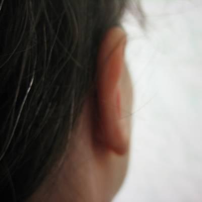 Fülplasztika 2 - Utána