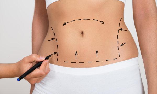 Zsírleszívás kombinálva hasplasztikával