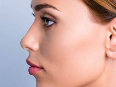 Mini arcplasztika árak